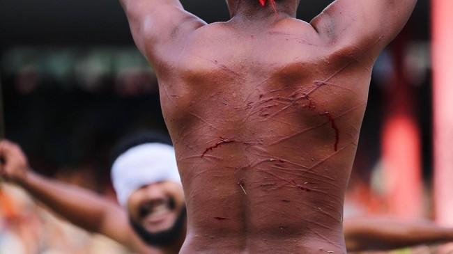 Ketika pertempuran selesai, pemuda kedua desa tersebut menggobati lukanya dengan menggunakan getah pohon jarak. Namun tak ada keluh kesah yang terlontar dari mereka. (ANTARA FOTO/Atika Fauziyyah)