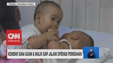 VIDEO: Kembar Siam Adam & Malik Siap Jalani Operasi Pemisahan