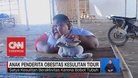 VIDEO: Kasihan, Anak Penderita Obesitas Ini Kesulitan Tidur
