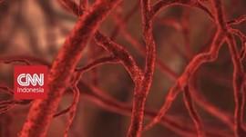 VIDEO: Mengenal Penyakit Kanker Darah