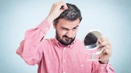 Stres Terbukti Ilmiah Jadi Penyebab Ubanan