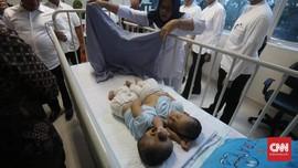 Bayi Kembar Siam Tapanuli Jalani Operasi Pemisahan 23 Juli