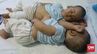 Tim Medis: Hati Bayi Kembar Adam dan Malik Menyatu