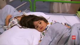 VIDEO: Cerita Sukses Pemisahan Kepala Bayi Kembar Siam