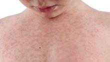 Penyakit Lyme, Ruam Merah Akibat Gigitan Kutu