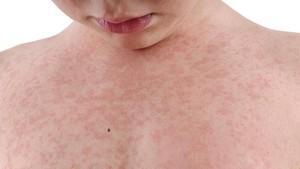 4 Penyakit Kulit yang Mengintai saat Musim Hujan