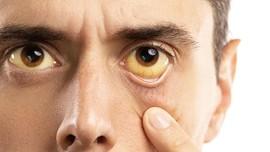 Kenali Gejala Hepatitis C Sejak Dini