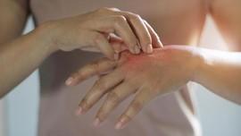 5 Gejala Alergi Dingin dan Cara Mengatasinya