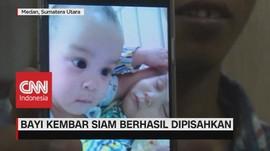 VIDEO: Bayi Kembar Siam Berhasil Dipisahkan