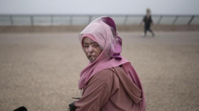 Kelainan ini disebabkan oleh genetik. XP lebih sering terjadi pada populasi yang mengalami inses atau perkawinan antarkerabat. (AP Photo/Mosa'ab Elshamy)