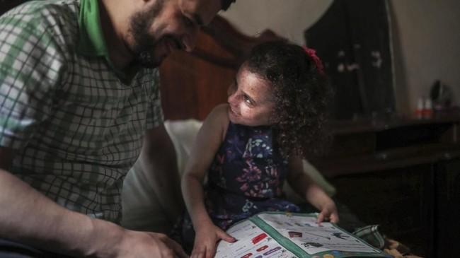 Sampai saat ini dia sudah melakukan 11 kali operasi untuk menghilangkan pertumbuhan kanker di kulitnya. (AP Photo/Mosa'ab Elshamy)