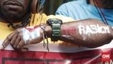 Kasus rasialisme itu sendiri terungkap lewat rekaman video di media sosial berupa pria yang diduga aparatdi depan pagar asrama mahasiswa Papua di Surabayaberteriak 'monyet' saat mempertanyakan soal bendera merah putih yang rusak. (CNNIndonesia/Safir Makki)