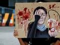 KJRI Hong Kong: Jurnalis Kena Peluru Karet Sudah Stabil