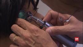 VIDEO: Alat Bantu Dengar Turunkan Risiko Alzheimer