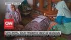 VIDEO: Satya Putra, Bocah Penderita Obesitas Meninggal
