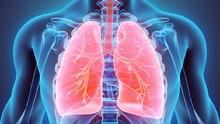 Hari Pneumonia Sedunia, Penyakit Paru Mematikan Intai Balita
