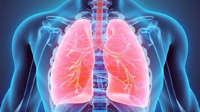 4 Risiko Akibat Pneumonia yang Tak Diobati