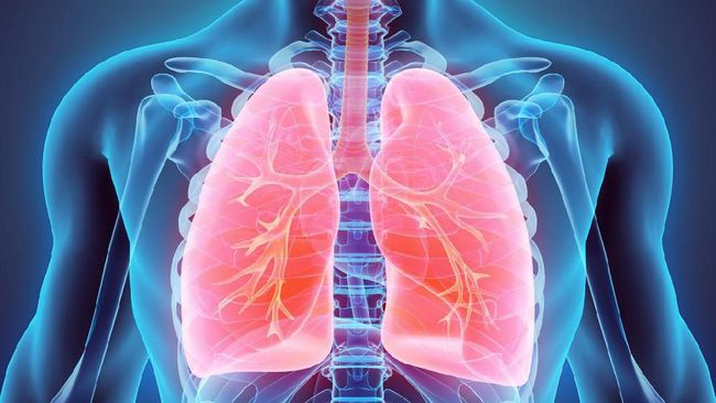 Mengenal Bronkopneumonia, Penyakit Infeksi Paru-paru Akut