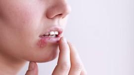 Penyebab dan Cara Mencegah Penyakit Herpes