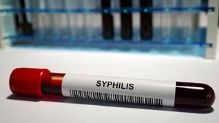 Sifilis Kongenital, Infeksi Seksual yang Melonjak Pesat di AS
