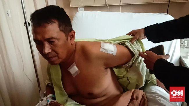 Cerita Kapolsek Menes Kena 5 Tusukan saat Lindungi Wiranto