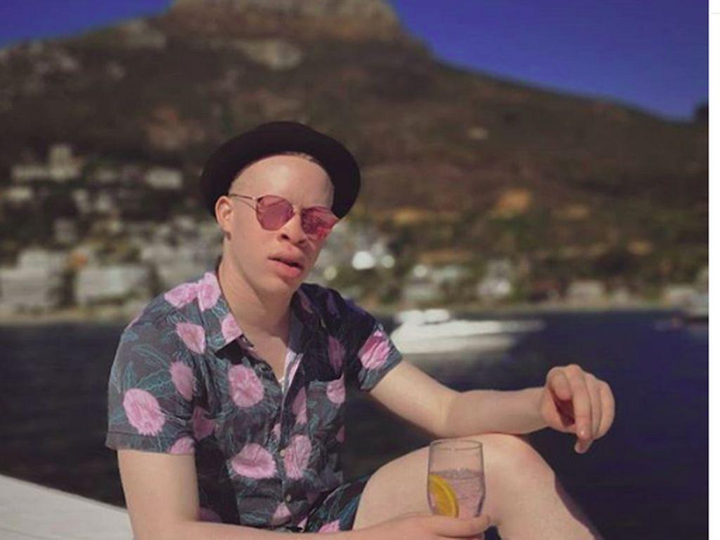 Potret Liburannya Model Albino, Sanele Junior Xaba