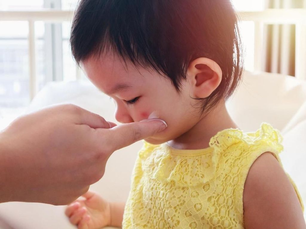 Bisul pada Anak, Penyebab dan Cara Mengobatinya