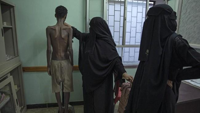 Sejumlah imigran yang selamat mendapatkan berbagai luka benda tumpul dan cambukan di beberapa bagian tubuh. (AP Photo/Nariman El-Mofty)