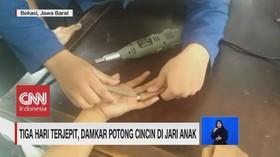 VIDEO: Selamatkan Jari Tangan, Damkar Potong Cincin Anak