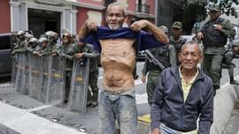 FOTO: Potret Kelaparan akibat Krisis Venezuela