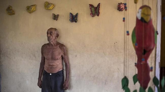 Krisis ekonomi akibat inflasi mata uang membuat masyarakat menerapkan sistem barter.(AP Photo/Rodrigo Abd)