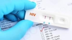 Tes HIV Mandiri Tak Bisa Jadi Patokan Utama Diagnosis