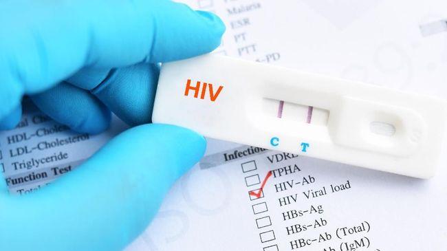 Pakar: Lockdown Berisiko Tingkatkan Risiko Penularan HIV