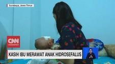 VIDEO: Kasih Ibu Merawat Anak Hidrosefalus