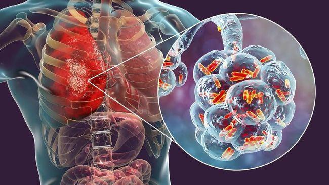 631caff7 e8f6 4ebf 960e 2931c5c36390 169 - Hasil Studi Terbaru! Virus Corona Mampu Perpendek Usia Pasien Hingga 10 Tahun
