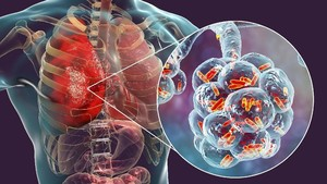 Korea Selatan Konfirmasi Infeksi Coronavirus Misterius China