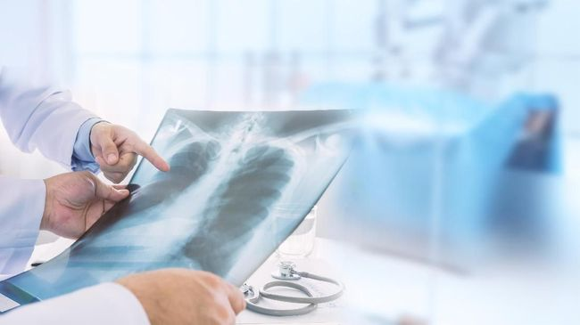 Thailand Temukan Kasus Kedua Pneumonia Misterius dari China