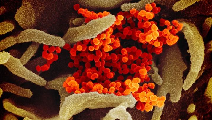 Begini Penampakan Virus Corona Jika Dilihat Dari Microskop.