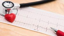 Cara Memeriksa Kondisi Kesehatan Jantung Sendiri