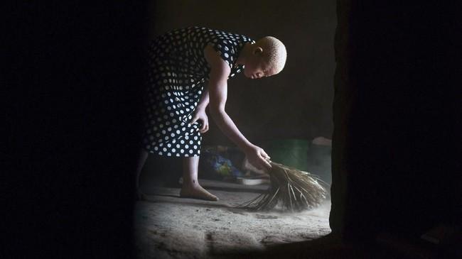 Untuk mengatasi masalah itu, mulai September lalu 5.000 alarm dibagikan kepada orang albino. Alat ini bekerja ketika pin ditarik dan mengeluarkan bunyi hingga menarik perhatian orang.(AP Photo/Thoko Chikondi)