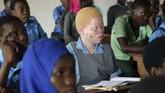 Asosiasi Nasional Orang dengan Albinisme mencatat sejak 2014, sekitar 26 orang albino tewas dan 11 lainnya hilang.(AP Photo/Thoko Chikondi)