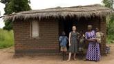 Takhayul yang tersebar menganggap bagian tubuh orang albino memiliki kekuatan khusus.(AP Photo/Thoko Chikondi)