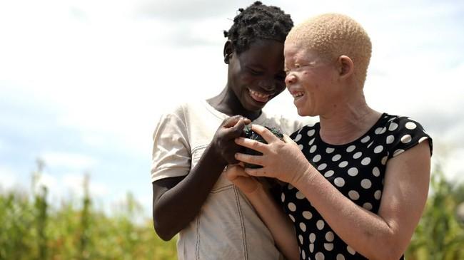 Warga albino di Malawi hidup di bawah bayang-bayang kemiskinan, hingga ancaman penculikan dan pembunuhan. (AP Photo/Thoko Chikondi)