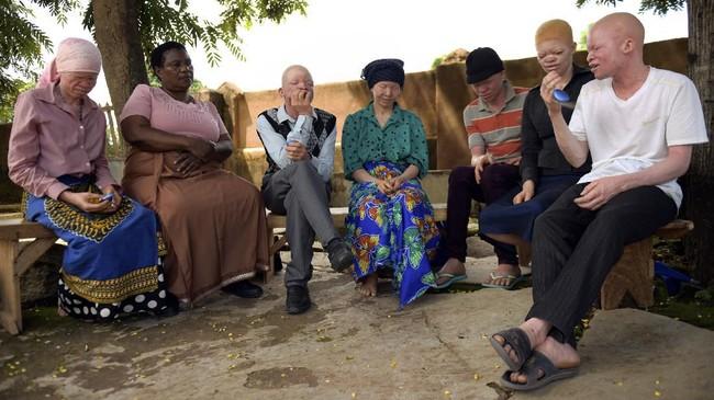 DistrikAmidu di Machinga memiliki sekitar 3.000 orang albino atau sekitar 0,8 persen dari total populasi 134 ribu orang di Malawi.(AP Photo/Thoko Chikondi)
