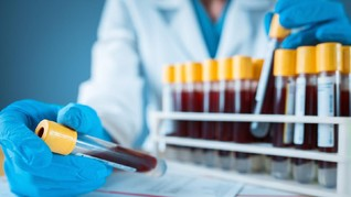 Ribuan Teken Petisi Tolak Rapid Test Corona 500 Anggota DPR