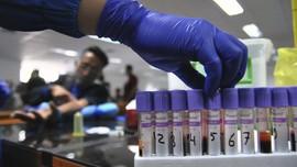 Rapid Test Corona di Kota Bogor, Tiga Positif dan 142 Negatif