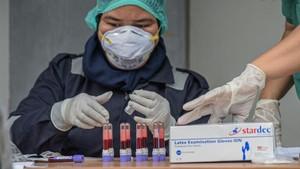 Rapid Test Covid-19, Dokter hingga Ahli Kompak Usulkan PCR
