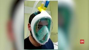 VIDEO: Masker Snorkeling Bisa Bantu Pernapasan Pasien Corona