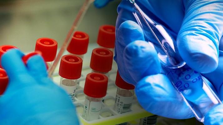 cover topik/dunia berlomba mencari vaksin virus corona dalam/Aristya Rahadian Krisabella