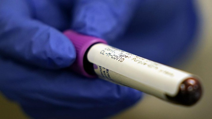A lab assistant holds a blood sample to be tested for COVID-19 antibodies, Tuesday, April 28, 2020, at Principle Health Systems and SynerGene Laboratory, in Houston. The company, which opened two new testing locations Tuesday, is now offering a new COVID-19 antibody test developed by Abbott Laboratories. (AP Photo/David J. Phillip)